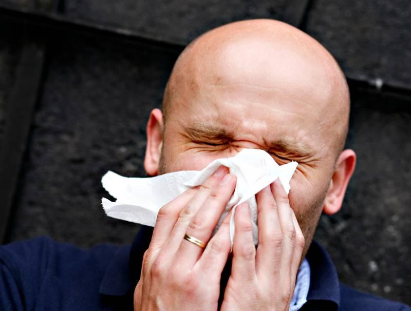 OSLO 20080430: Mann er forkjølet. Snyter seg. Har allergi. Pollen. Pollenallergi. Kniper øynene sammen. Er syk. Giftering. Lommetørkle. Snytepapir. Feber.  Nys. Nysing. Foto: Sara Johannessen / SCANPIX NB! MODELLKLARERT