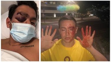 Hatkriminalitet: –  Han sparket meg i magen og ropte «homse»