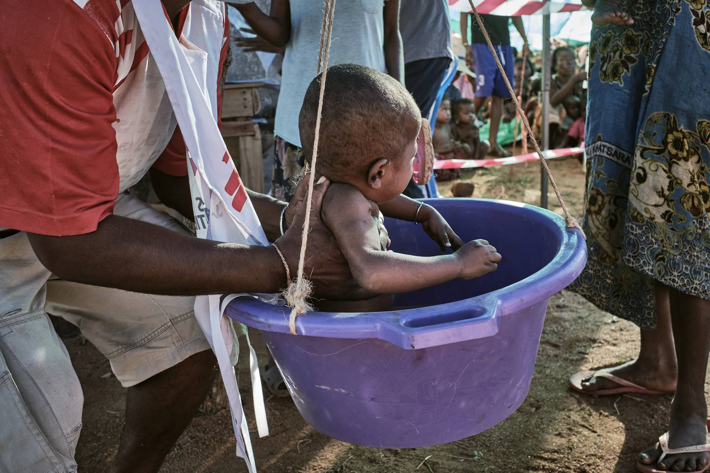 Mennesker sørøst på Madagaskar står overfor den mest akutte ernærings- og matkrisen regionen har sett de siste årene. Leger Uten Grenser begynte å etablere mobile klinikker i Amboasary-distriktet i slutten av mars
