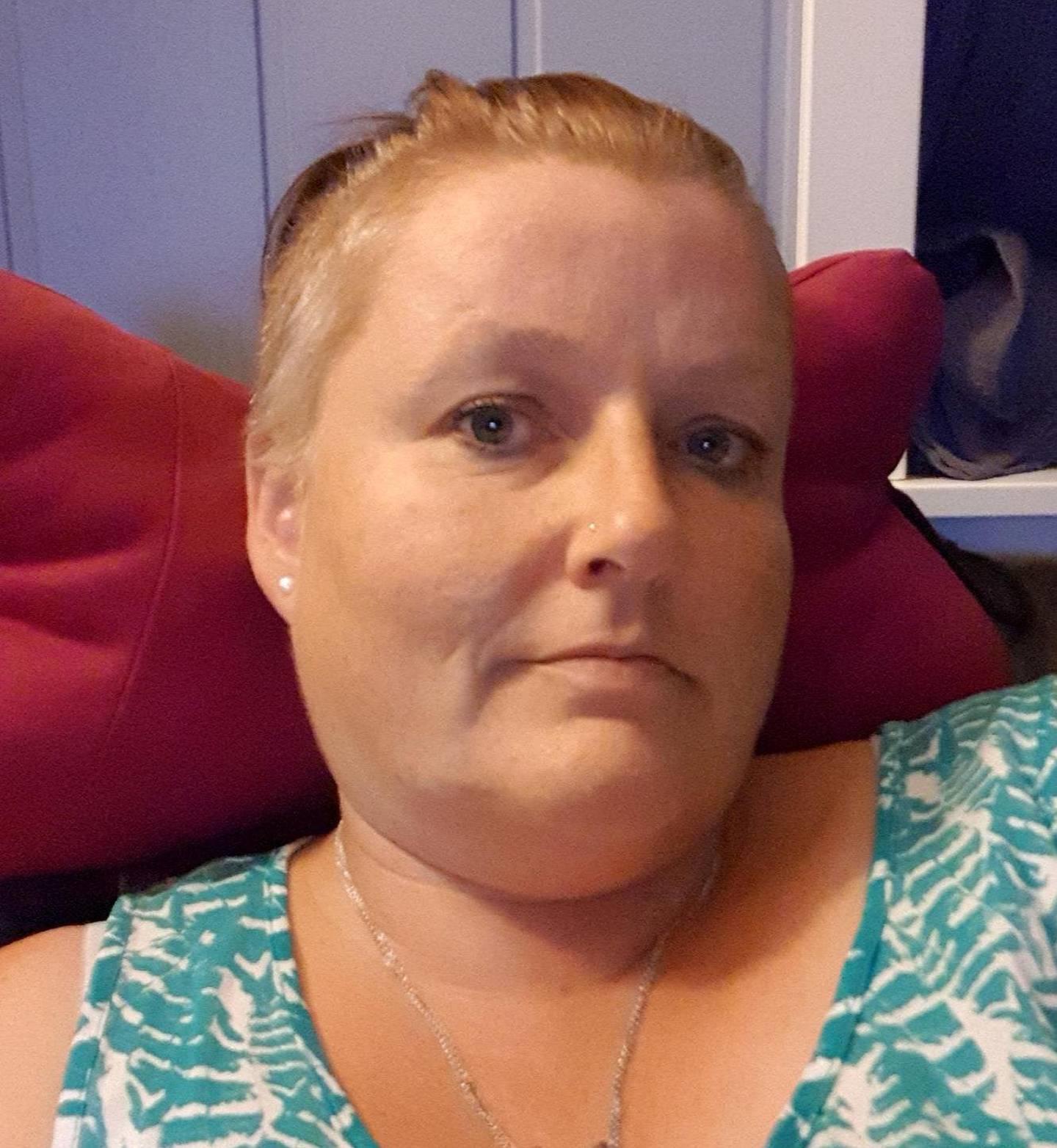 Mette Helen Falk Sivertsen er uføretrygdet og har ikke råd til å reparere tennene.