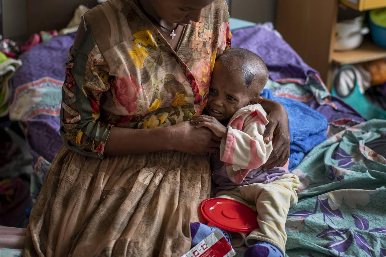 En kvinne holder sitt 22 måneder gamle barn, som lider av feilernæring, på et sykehus i Mekele i Tigray.