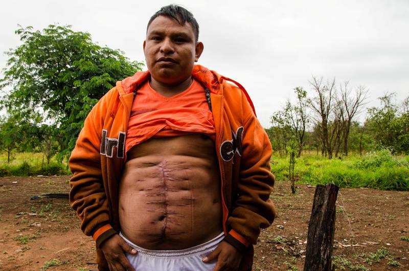 Læreren Jesus de Souza kom fra angrepet på urfolksokkupasjonen med livet i behold. Det gjorde ikke broren hans Clodiode. Etter tre uker på sykehus forbereder han seg på å vende tilbake til jobben som lærer i urfolksreservatet Caarapó.