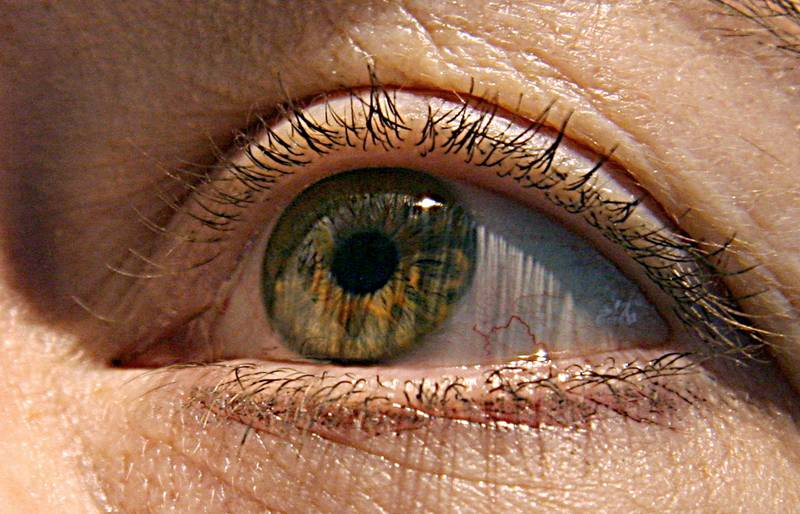 (FILES) This file photo taken on April 24, 2007 shows a cloes-up of a woman's eye. An experimental treatment may significantly slow the progression of the blindness-causing disorder macular degeneration, in what would mark the first therapy of its kind, research showed on June 21, 2017. There are currently no available treatments to stymie macular degeneration, the leading cause of blindness in people aged 60 and older. More than five million patients globally are affected by a form of the condition known as geographic atrophy, which causes lesions on the retina.  / AFP PHOTO / KAREN BLEIER