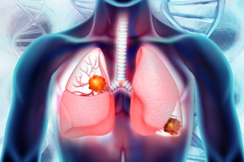 Lung cancer. lung disease